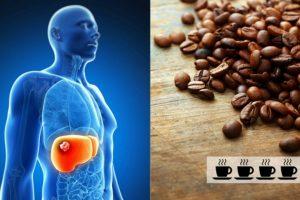 قهوه برای کبد مضر است؟